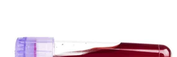 blood sample tube