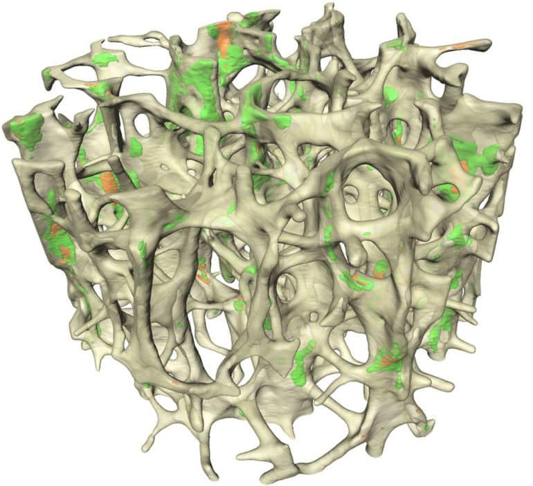 ancellous bone