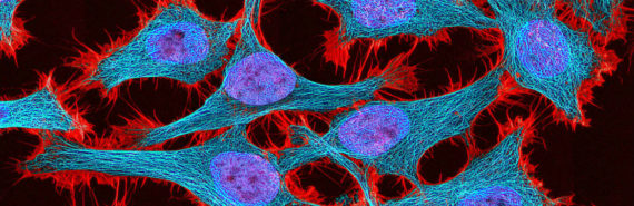 HeLa cells in culture