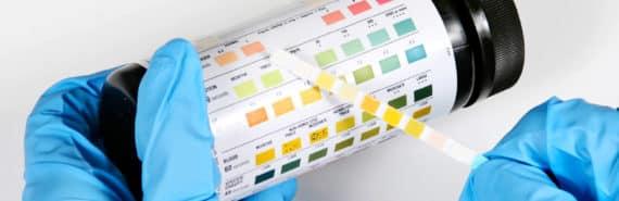 urine test dipstick
