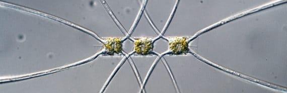 phytoplankton Chaetoceros