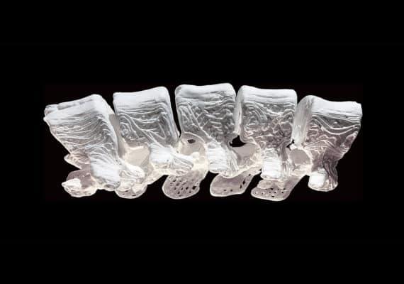 3D-printed bone implant