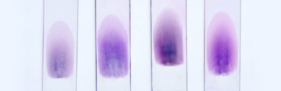 blood samples on slides