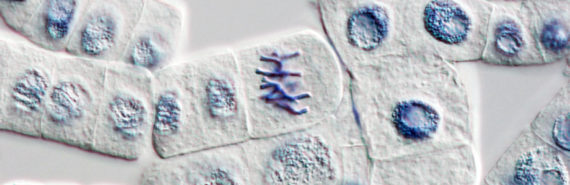 mitosis in onion root-tip cells