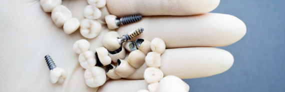 dental implants in hand