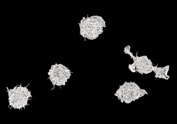 macrophages on black