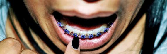 woman points to braces on teeth
