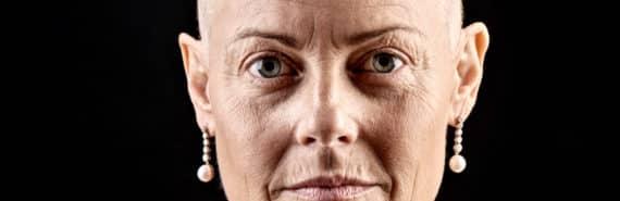 woman undergoing chemo