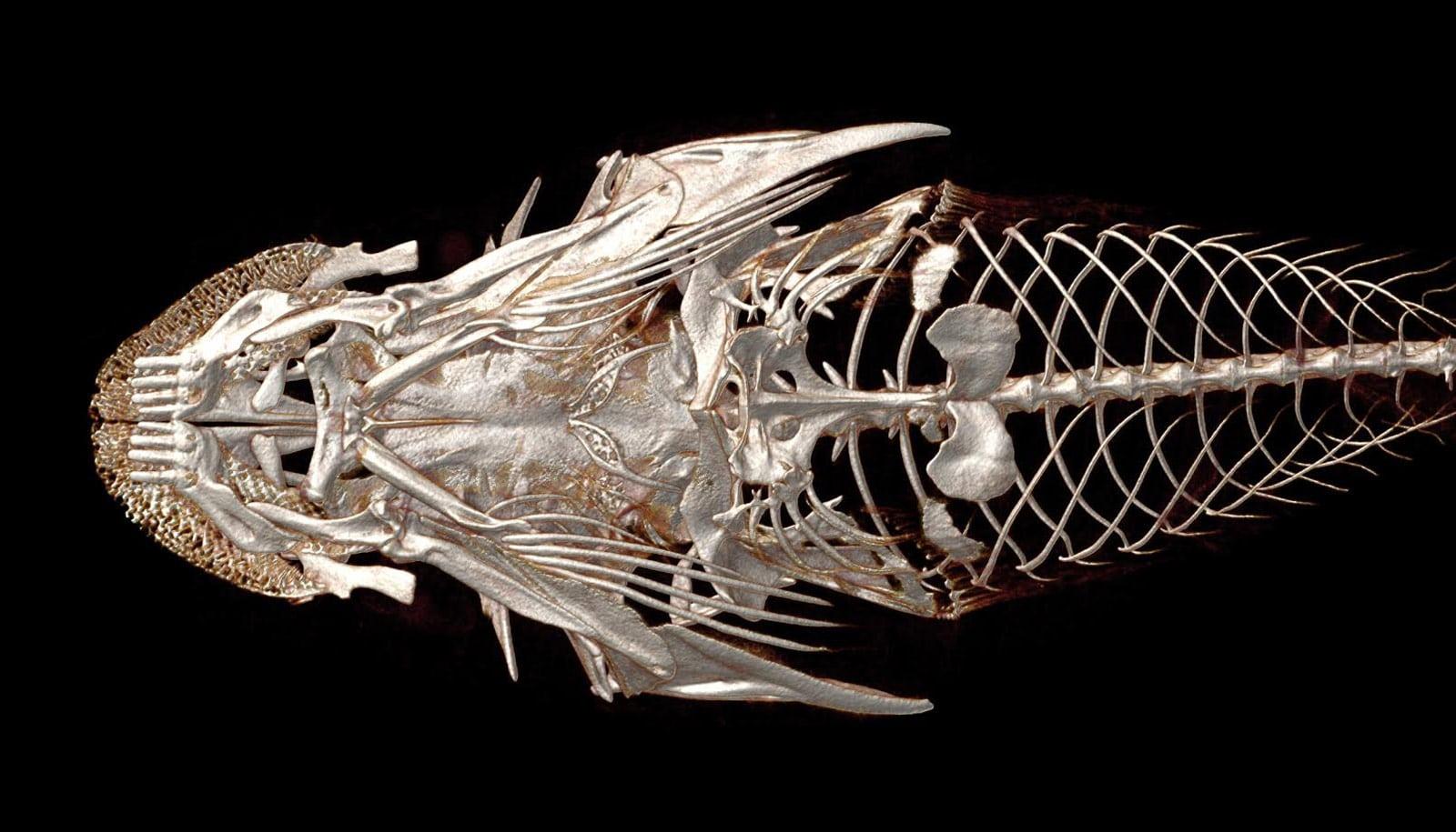 ventral body scan