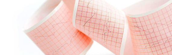 roll of paper with ECG results