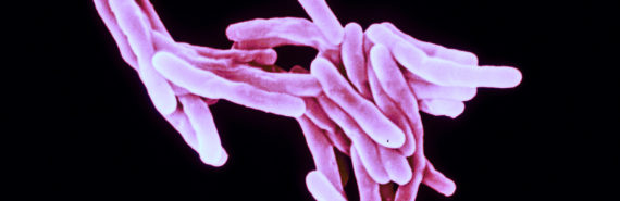 Mycobacterium tuberculosis bacteria (Mtb)