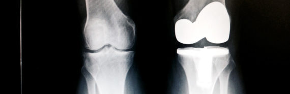 knee replacement surgery x-ray