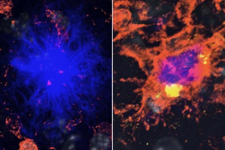immune cells in the brain