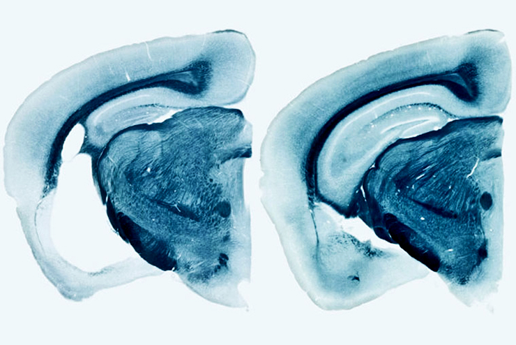 Alzheimers brain comparison
