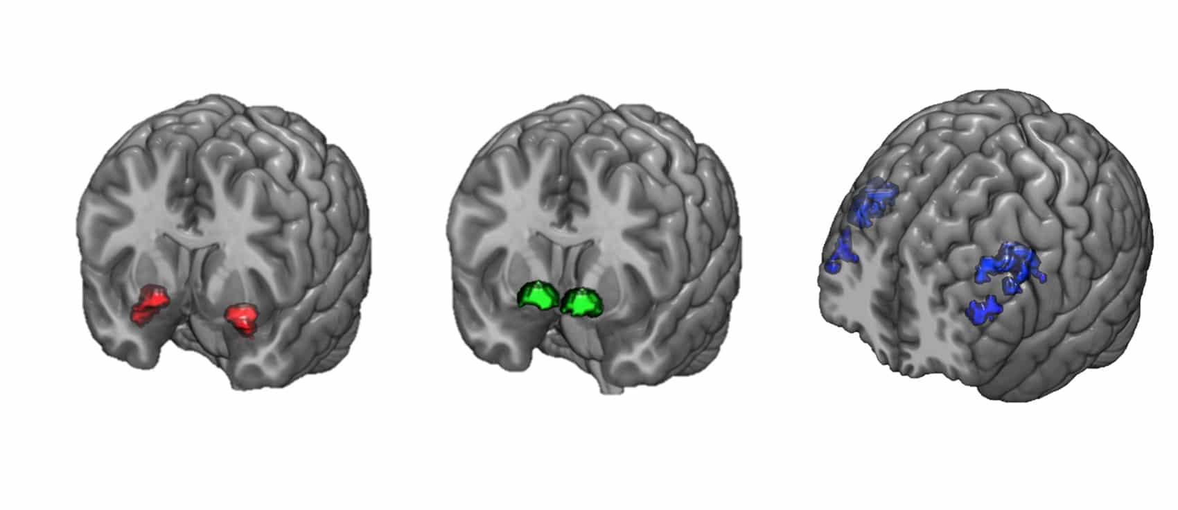 three brain diagrams