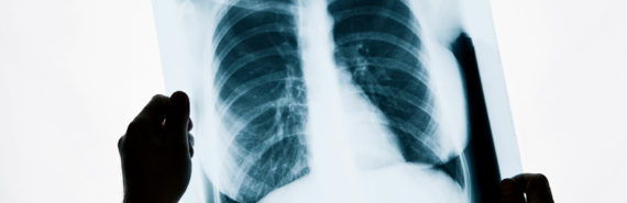 Chest X-ray held by two hands