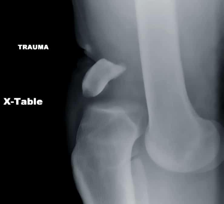 knee dislocation x-ray