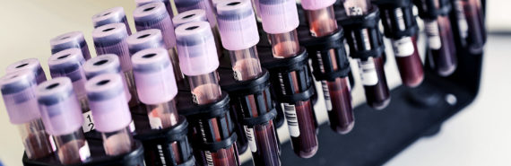 blood samples in vials (multiple myeloma/blood cancer concept)