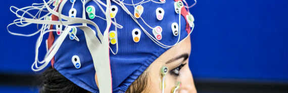 EEG cap (seizures, epilepsy, + artificial intelligence)