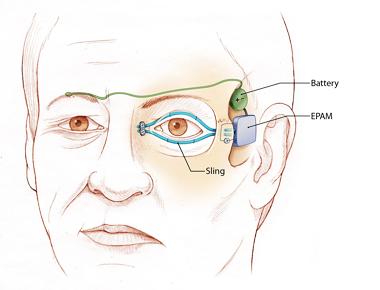 eyeblink2