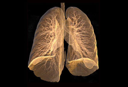 CT of emphysema lung