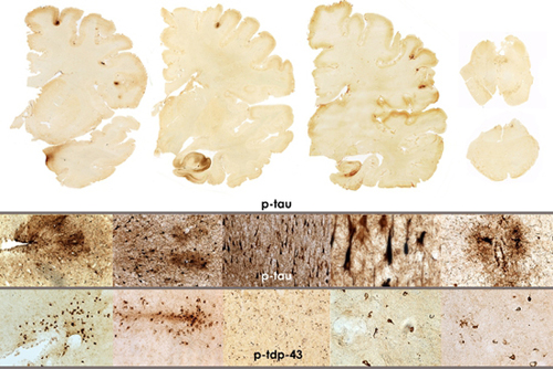 Study: War vets', athletes' brain injuries similar - CBS News