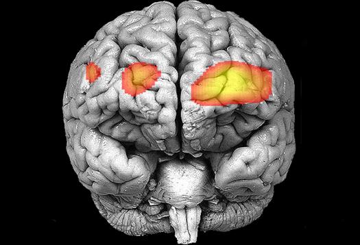 Scans show what makes a brain 'borderline' - Futurity