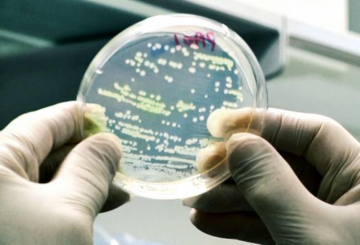 To treat cystic fibrosis, drug mimics HIV