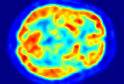 High blood sugar may raise Alzheimer's risk