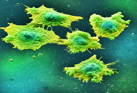 Protein helps colon cancer move and invade