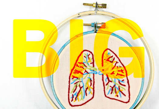 For lung transplants, bigger is better