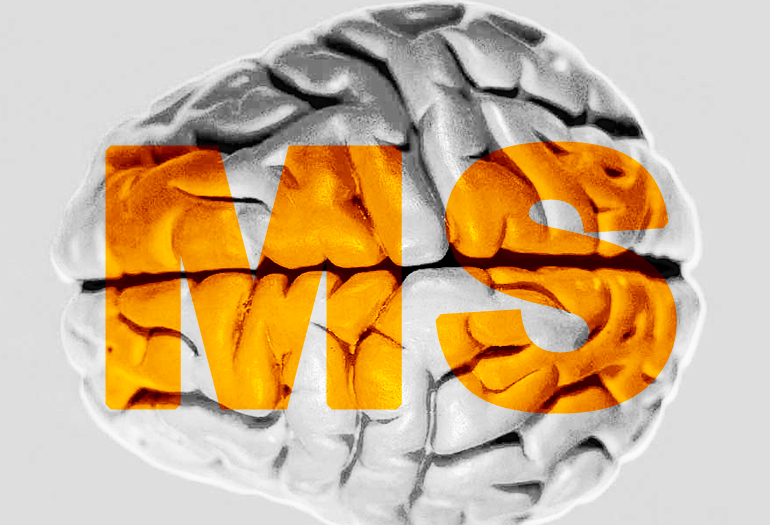 Brain's gray matter may be first target of MS