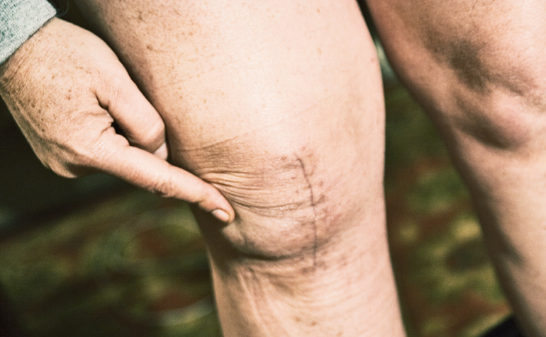 Amino acids may let new knees work faster