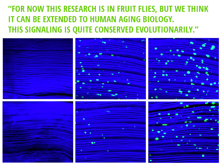 """More protein aggregates, shown as green specks, built up over 1, 3, and 5 weeks (left to right) in the muscle fibers of control flies (top row) compared to those in which dawdle, which hinders their cleanup, was suppressed (bottom row). (Credit: Tatar lab/Brown University)"""" width=""""770"""" height=""""576"""" class=""""size-full wp-image-583742"""" /> More protein aggregates, shown as green specks, built up over 1, 3, and 5 weeks (left to right) in the muscle fibers of control flies (top row) compared to those in which dawdle, which hinders their cleanup, was suppressed (bottom row). (Credit: Tatar lab/Brown University)"""