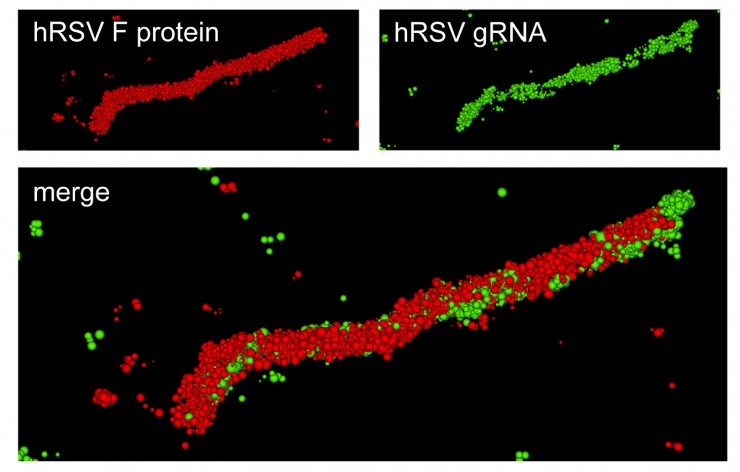 A super-resolution optical image of a specific hRSV viral filament produced with dSTORM technology. The viral filament is approximately 4 microns in length, typical of hRSV. (Image courtesy of Eric Alonas and Philip Santangelo)
