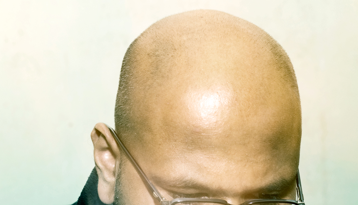 Hair follicle stem cells hold clues to balding