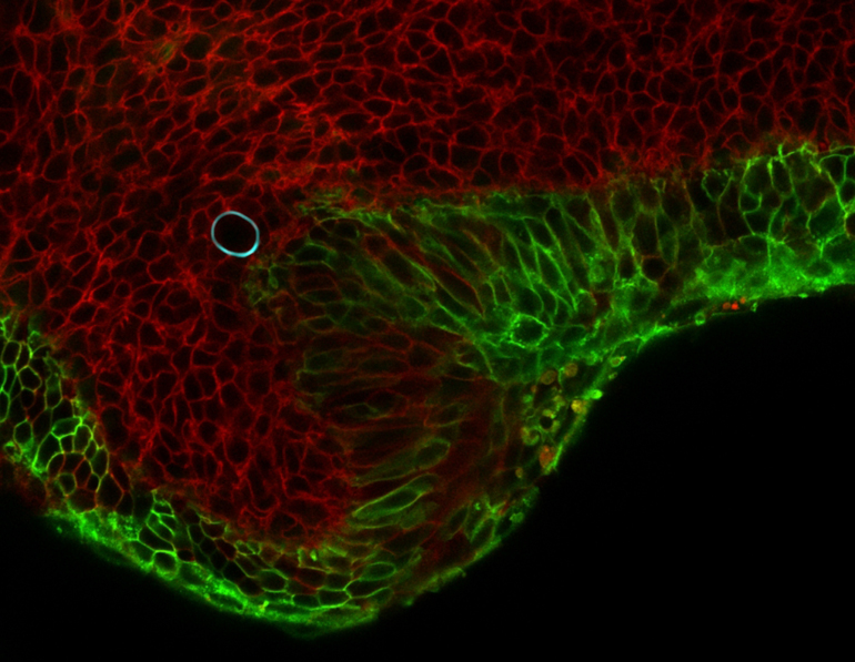 Image of cells in a mouse mandible (red and green) squeezing an oil droplet (cyan). The deformation of the droplet allows scientists to obtain the squeezing forces generated by the cells around the droplet. (Credit: Otger Campás/UC Santa Barbara)