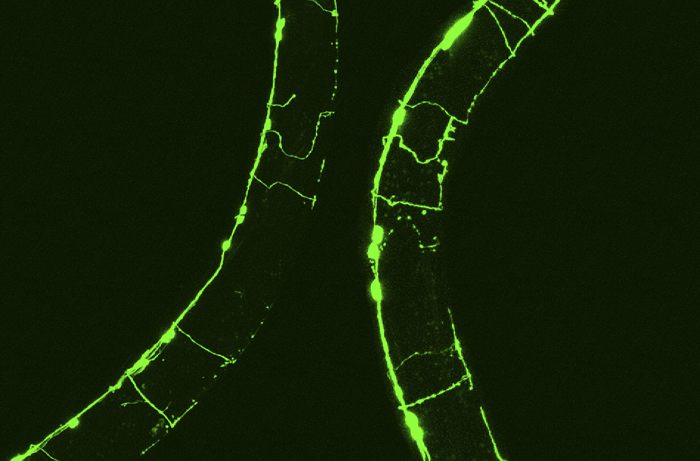 This gene stops nerve fibers from decaying