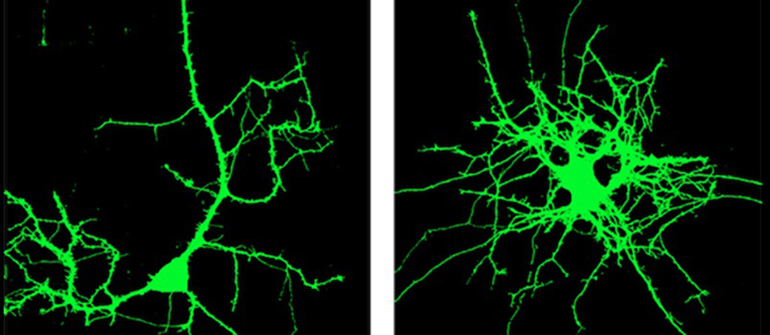 Neural branching with normal REM2 (left) and neural branching with REM2 decreased (right). (Credit: Brandeis University)