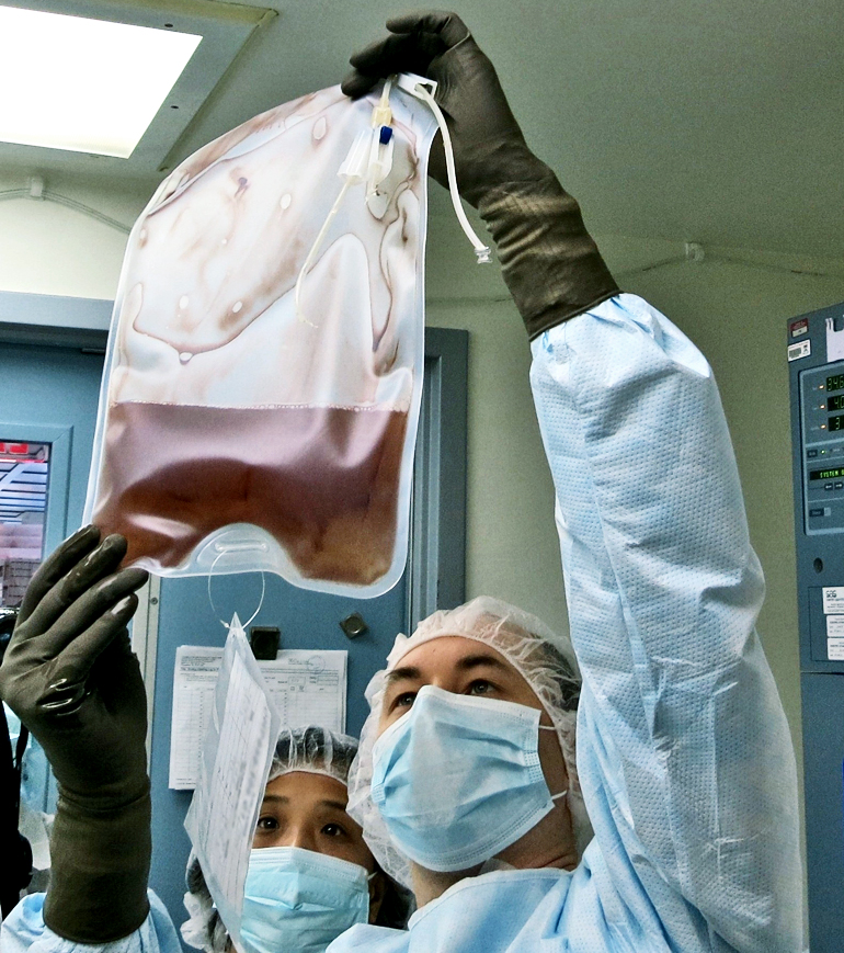 Technicians hold up a bag of modified T cells genetically edited to resist HIV infection. (Credit: Penn)