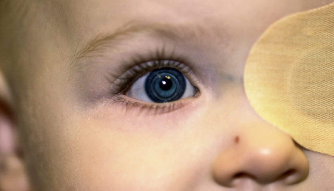After Cataract Surgery Contact Lenses Best For Babies