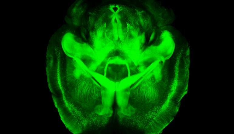 Fly-through brain images could unravel how we think