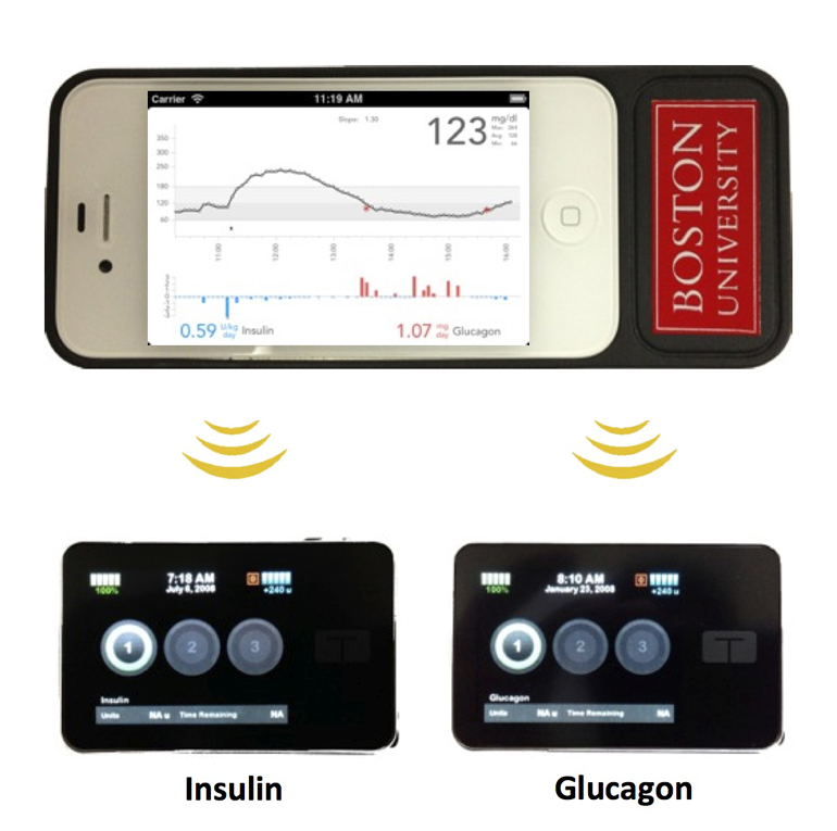 The bionic pancreas consists of a smartphone (above) hardwired to a continuous glucose monitor and two pumps (below) that deliver doses of insulin or glucagon every five minutes. (Credit:  BU department of biomedical engineering)