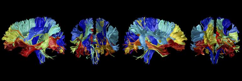 MRI brain fiber images