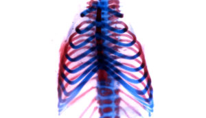 mouse rib cage showing cartilage