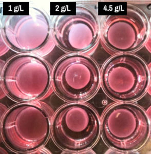 assays of heart-valve cells and glucose