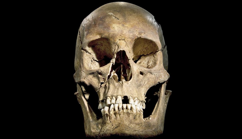 the skull of Richard III