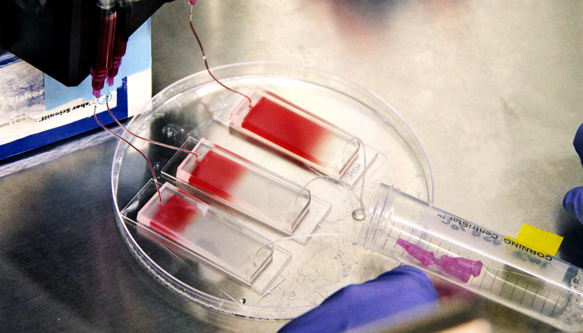 Will 'capture and culture' personalize cancer therapy?