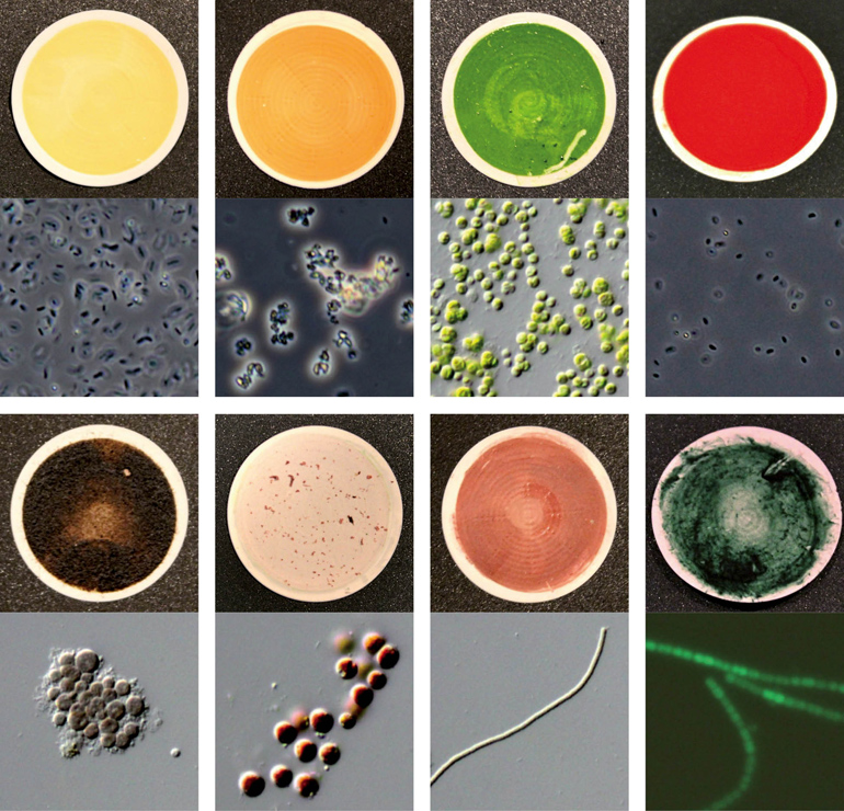 microorganisms and micrographs