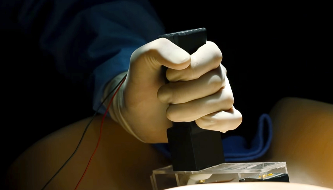 Magnets let new tool move organs for surgery